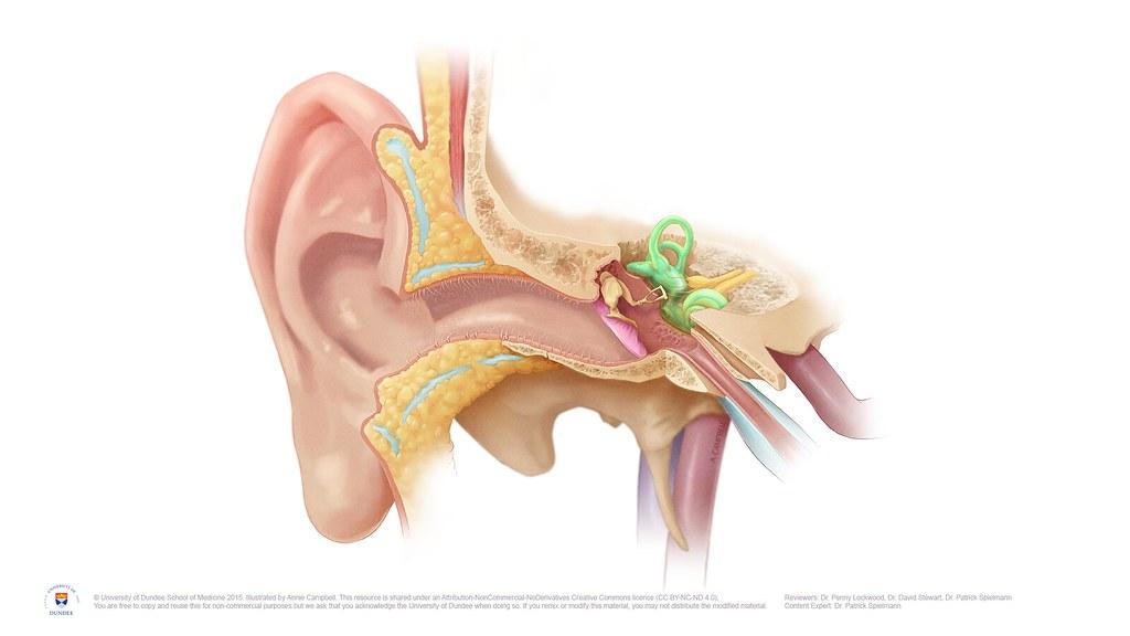 Vem får tinnitus?